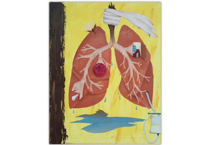 Pneumothorax - 24in x 30in - Oil Paint On Canvas